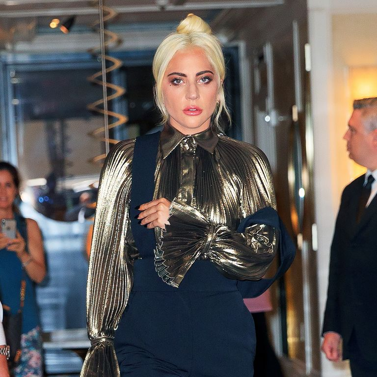 Lady Gaga Just Shared An Arm X-Ray Photo Following Her Stage Fall On Instagram