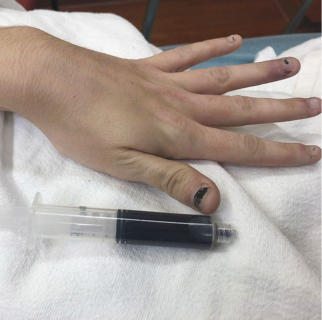 A 25-Year-Old Woman Turned Blue After Using A Topical Numbing Medicine