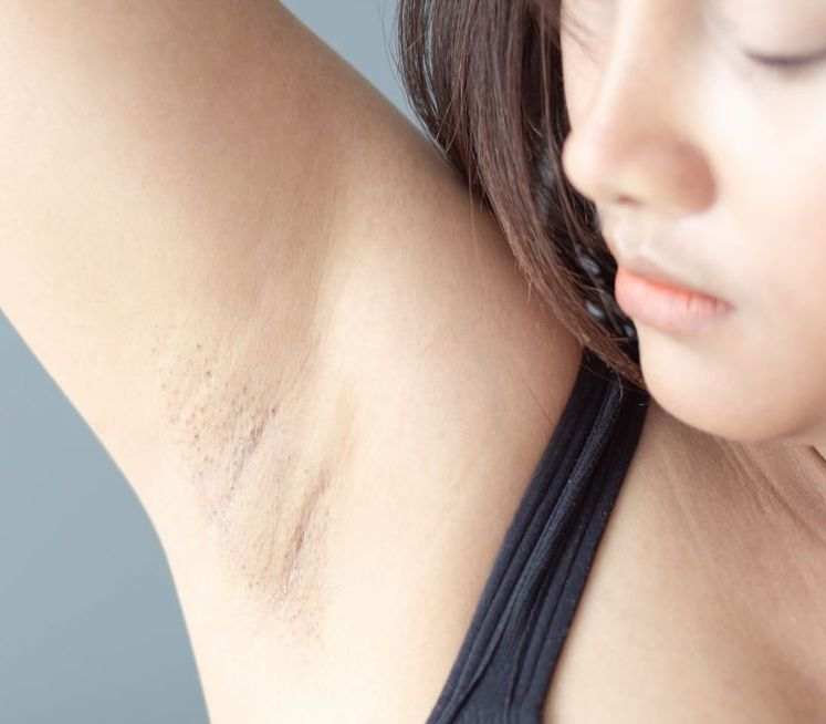 11 Symptoms Of Breast Cancer In Women That Aren't Lumps