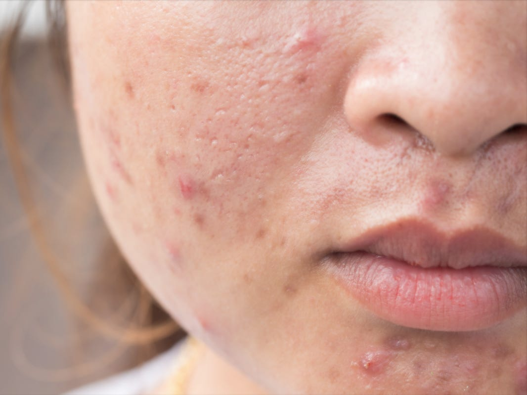 Yes, pregnancy can cause acne. Here's when you will breakout the worst and how to treat it.
